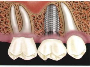 Имплантация зубов — новые методики и технологии