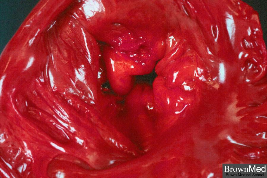 Диагностика и лечение пролапса митрального клапана