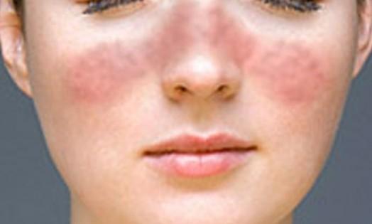 Причины красной сыпи
