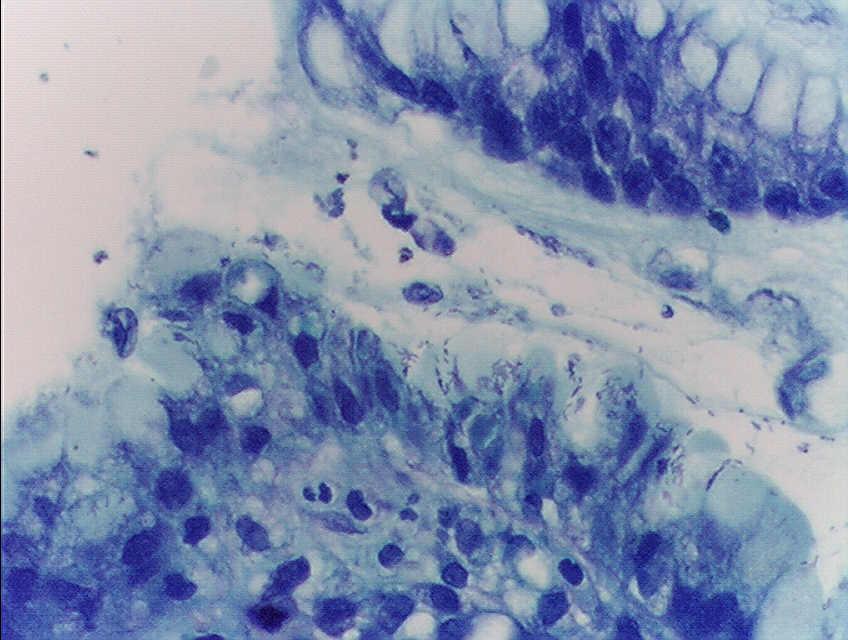 Человечество стоит на грани новых пандемий инфекционных заболеваний – ВОЗ