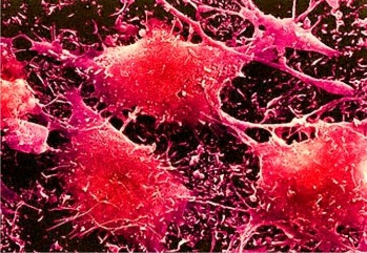 Новые методики для борьбы с раком