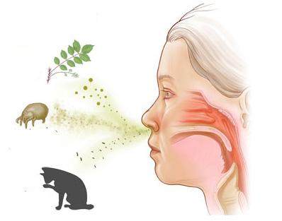 Аллергический ринит: лечение