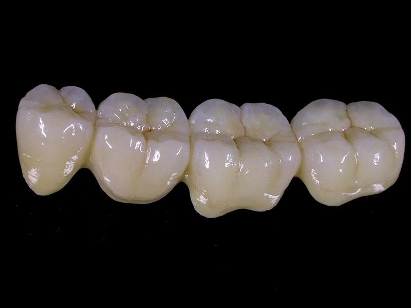 Преимущества металлокерамики перед другими видами протезирования
