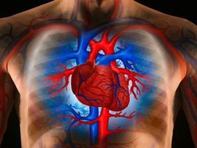 Впервые в Иваново будет применен уникальный метод лечения сердечных заболеваний