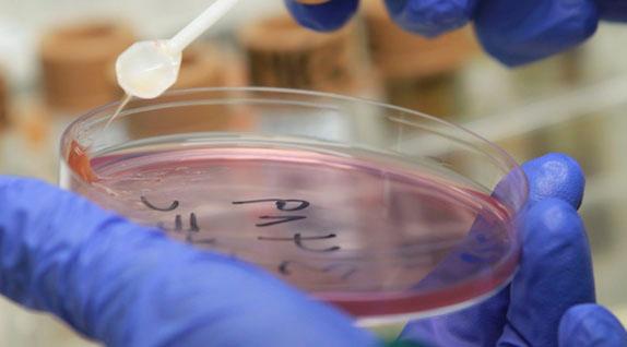 Острой кишечной инфекцией заразились суворовцы на Урале