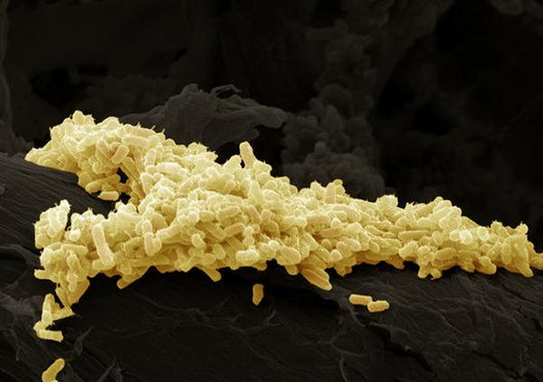 Как кишечные бактерии борются с вирусами