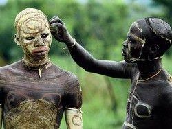 В Африке появилась новая разновидность СПИДа