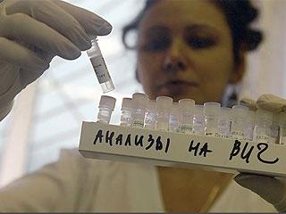 1597 случая ВИЧ-инфекции выявлено в городе Каменск-Уральск Свердловской области за 15 лет