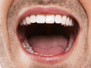 Бактерии во рту вызывают диабет, инфаркты и рак