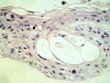 Ученые придумали, как обнаружить смертельно опасный вирус папилломы человека