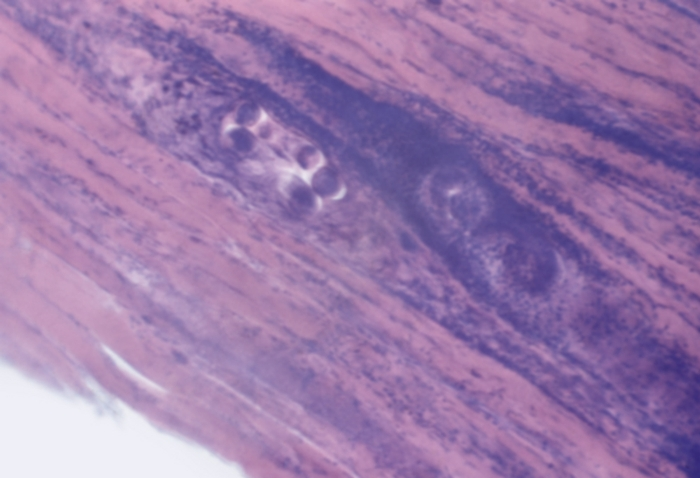 Смертельная инфекция в Норильске