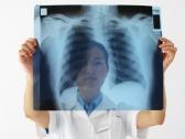 Амоксициллин не эффективен при инфекциях нижних дыхательных путей