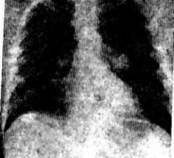 Четверо подмосковных солдат умерли от атипичной пневмонии
