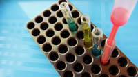 Стволовые клетки могут быть полезны при лечении сепсиса