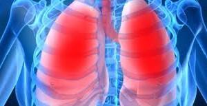 Вирус атипичной пневмонии наступает: риск заражения мал