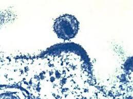 Найден фермент, способный справиться с вирусом СПИДа
