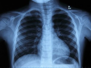 Флюорография vs Рентгенография