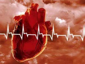 Инфаркт: факторы риска