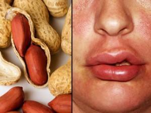 Ученые нашли способ победить сильнейший аллерген