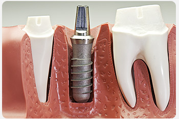Вторая молодость ваших зубов