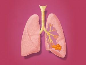Продукты, которые предотвращают заболевания дыхательных путей