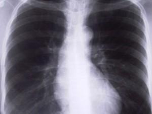 Гелиотерапия и купание для больных туберкулезом