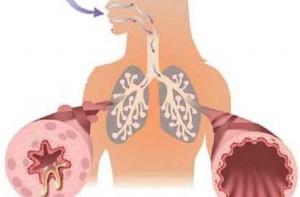Лечение I стадии астматического статуса