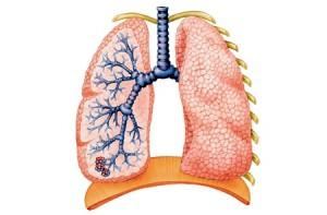 Как улучшить здоровье легких?