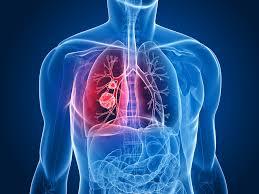 Исследование носовой полости может спасти курильщика от рака легких