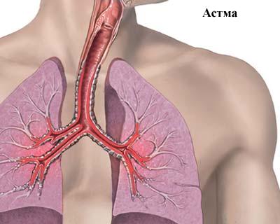 Острая и хроническая бронхиальная астма — симптомы, причины, способы лечения