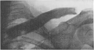Поражение костей при сифилисе