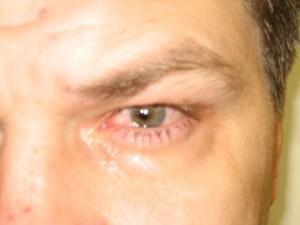 Герпес глаз: симптомы