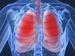 Поражения легких, вызванные вдыханием токсических веществ