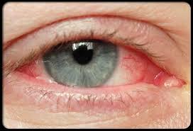 Хламидиоз глаз (хламидийный конъюнктивит): симптомы и лечение
