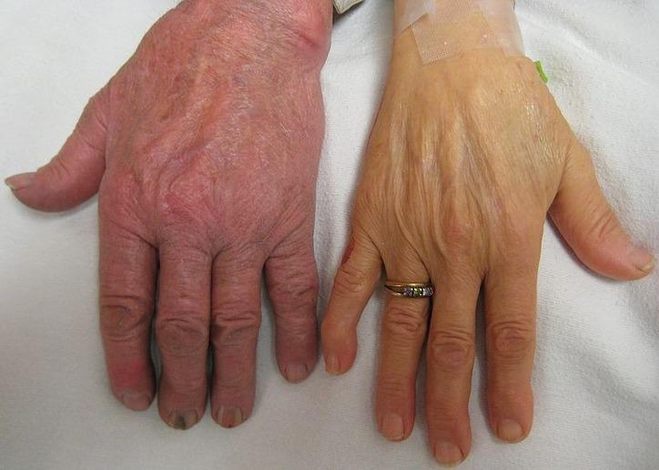 Причины и симптомы анемии