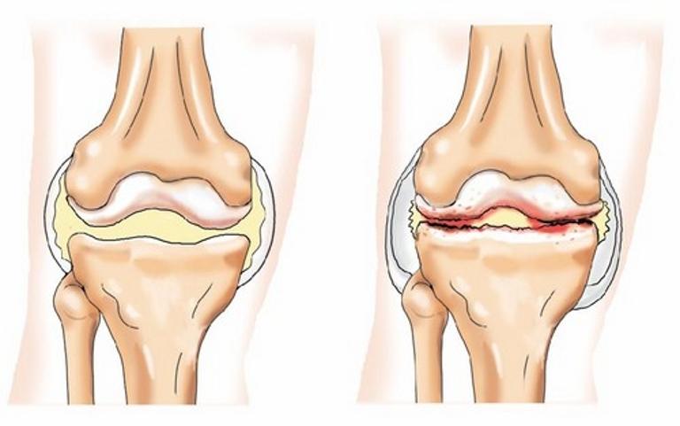 Питание при артрите и остеоартрозе