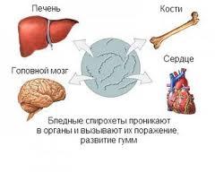 Сифилис внутренних органов