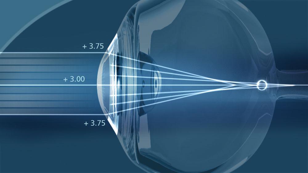 Лазерная коррекция зрения — эффективное лечение и полное избавление от недуга
