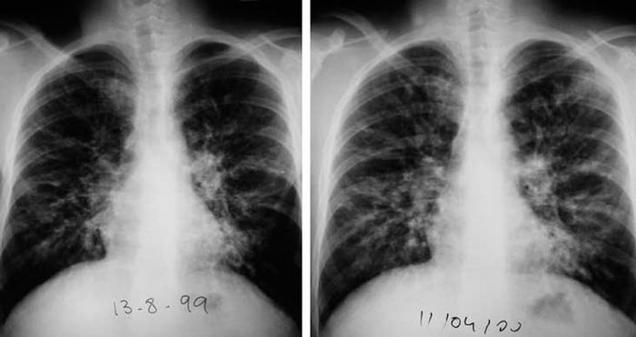 Обнаружены факторы риска нетуберкулезной микобактерии легких