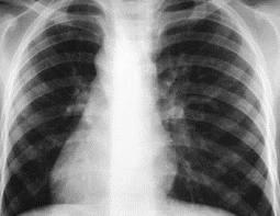 Диссеминированный туберкулез легких — Что происходит?