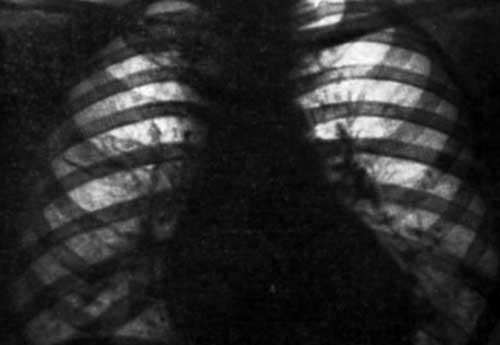 Альвеолярный микролитиаз легких. Причины. Симптомы. Диагностика. Лечение
