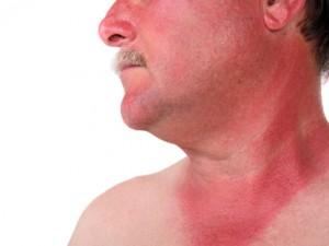 Геморрагическая лихорадка с почечным синдромом (ГЛПС)