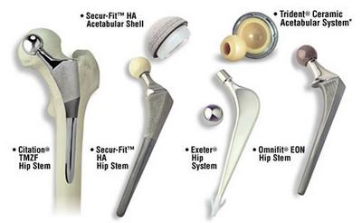 Подготовка к эндопротезированию коленного сустава