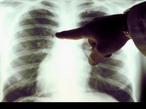 Методы экстракорпоральной гемокоррекции при туберкулезе
