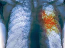 Туберкулезный гепатит