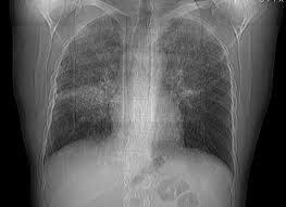 Саркоидоз легких — Диагностика