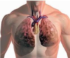 Острый бронхит: лечение, симптомы, классификация
