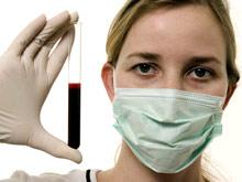 Новый тест покажет, кому угрожает смерть от инфекции