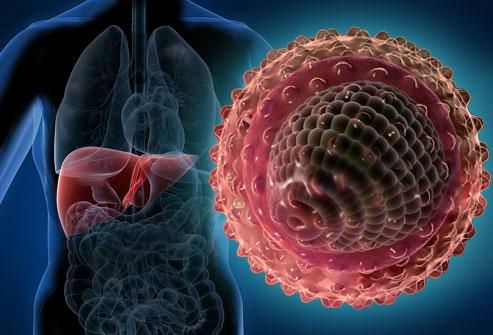 Гепатит С: причины, симптомы, лечение, профилактика