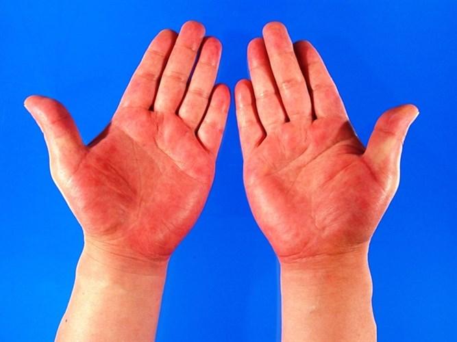 температура боль суставы в области паха псевдотуберкулез полиартрит